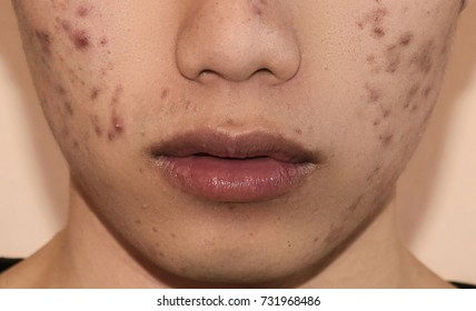 Chiangrai, Thailand - OCTOBER 11, 2017: Close-up of acne on the face skin caused by the hormone and the scars, wrinkle and acne inflammation on the face.