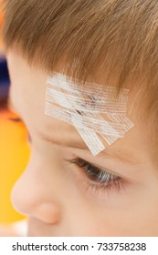 a child with a band-aid on stitched forehead in an accident