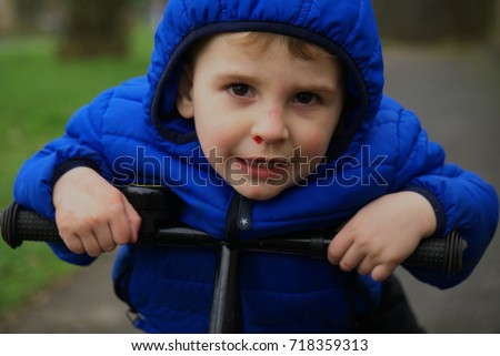 Child With Bleeding Nose on the bicycle