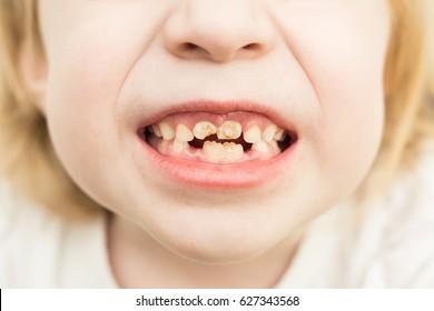 Child blonde showing bad teeth