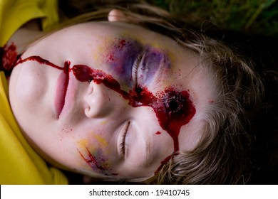 Child with a bullet hole