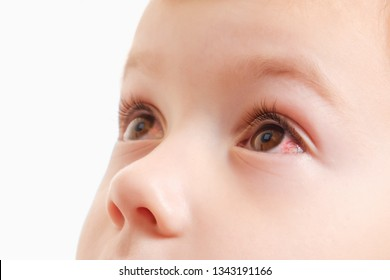 Child conjunctivitis red eye with infection, baby face,  illness.