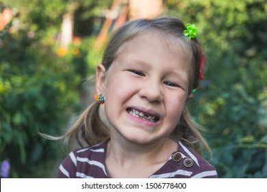 Child with a dental orthodontic device and without one tooth.