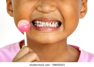 Child is eating a lollipop and smiling and having multiple caries.