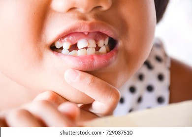 Child girl show tooth decay and broken tooth. Unhealthy baby teeth concept.