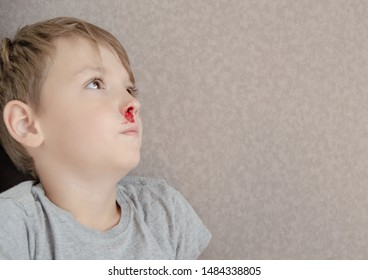 the child has nosebleed. disease, pressure or abuse concept with children