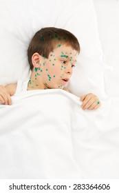 child has the virus on skin, white background