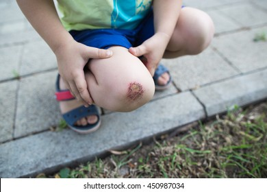 child hurt his knee on the pavement. abrasion