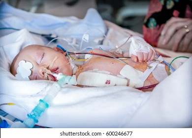 Child in intensive care unit after heart surgery. Shallow depth of field.