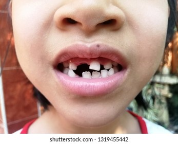 Child mouth of toddler without anterior milky tooth. Toothless smile. Child lost front tooth. Tooth Fairy. Children's dediatric dentistry, dental care, go to the dentist.