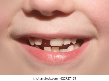 Child mouth of toddler without anterior milky tooth. Toothless smile. Child lost front tooth. Tooth Fairy. Children's dediatric dentistry, dental care, go to the dentist. Frank carefree serene smile