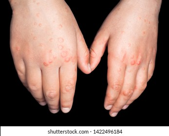 Child with red rash from Coxsackievirus, on both hands, backside, isolated on black