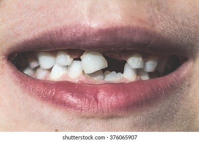 Child shows missing teeth. Child face
