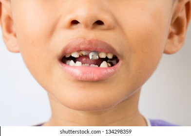 Child try to smile with decay teeth