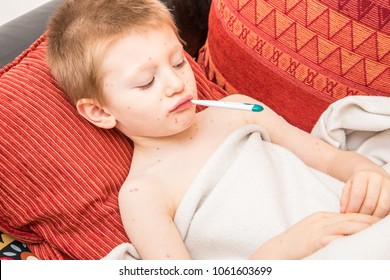 child with varicella that measures fever