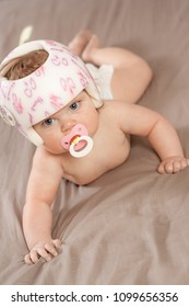 Child wearing a helmet due to plagiocephaly while crawling