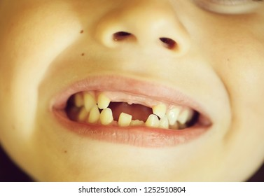 Childish cute mouth with beautiful lips and missing milk teeth dental health care and hygiene six years old toothless kid child closeup, horizontal picture
