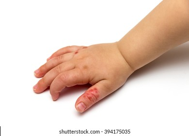 children hand with disease isolated