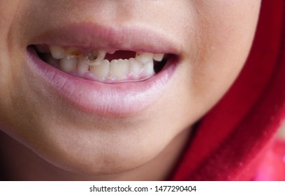 Children open their mouths showing cavities