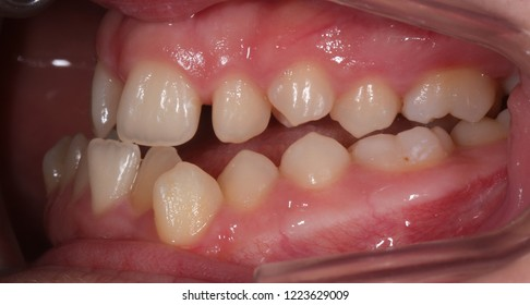 Children teeth  with malocclusion