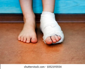 Children's foot in white plaster and bandages close-up