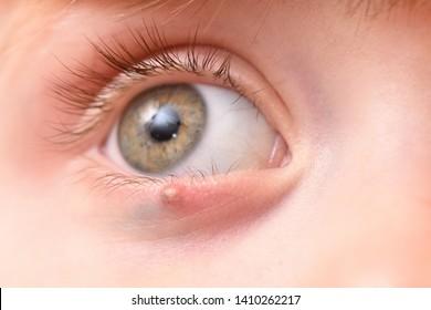 Eyelid Images, Stock Photos & Vectors   Shutterstock