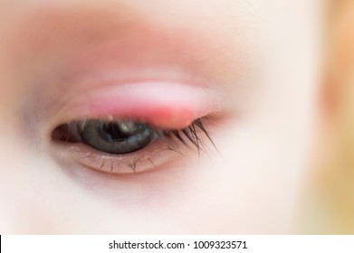 the child's eye suffers from ailment