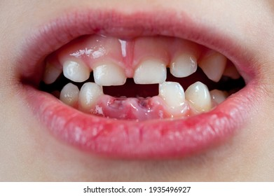 Child's mouth with two anterior lower milk teeth pulled out.