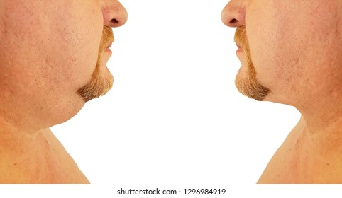chin fat man before and after procedures