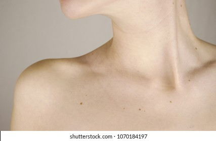 Chin neck and clavicle of a girl with lots of moles on the skin close-up