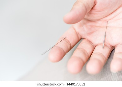 Chinese girl Acupuncture needle treatment with chinese doctor in finger and hands.The doctor sticks needles into the girl's body on the acupuncture.Hand trigger finger  lock concept.