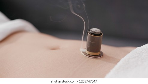 Chinese medicine moxibustion therapy