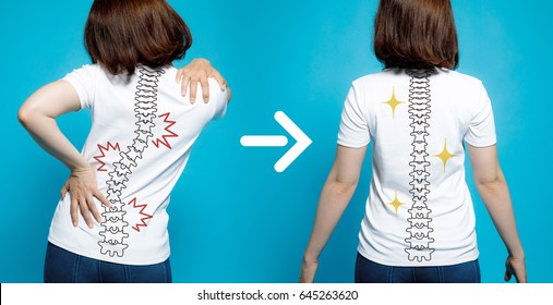 chiropractic before after image. from bad posture to good posture. woman's body and backbone.