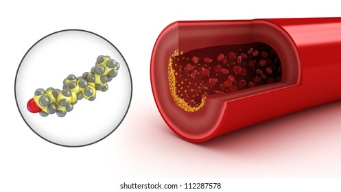 Cholesterol plaque in artery and cholesterol model