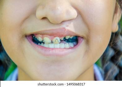 CHON BURI, THAILAND - AUGUST 15, 2019: Cleft lip in child. Dental treatment. Cleft lip.