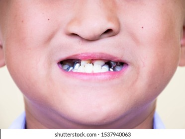 CHON BURI, THAILAND - SEPTEMBER 23, 2019: An Asian schoolboy who has a cleft lip, and shows his teeth that are treated in the mouth.