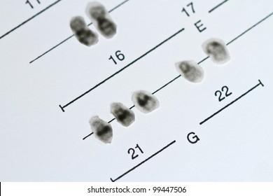 Chromosomes 21, Trisomy 21, Down Syndrome