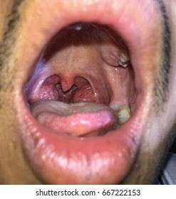 Chronic hypertrophic tonsillitis in young Asian male comes with history of chronic sore throat , dysphasia ( difficult swallowing) and obstructive sleep apnea / severe snoring