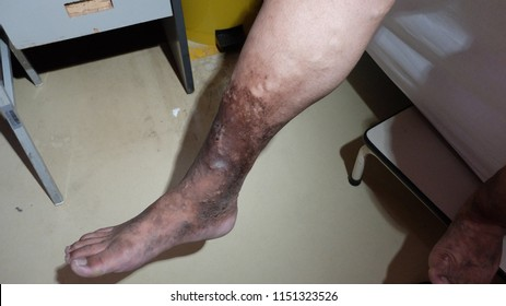 Chronic Venous Insufficiency with Varicose Veins and Hyperpigmented Lower Limb.