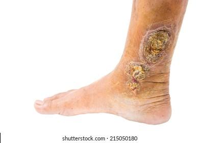 chronic venous leg ulcer