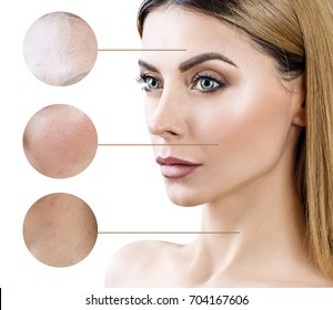 Circles shows problem skin of adult woman