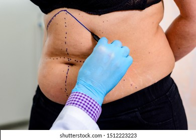 For clarity off  proses doctor drawing a dashed line on areas of the patient's body. Preparing for an operation to remove  fat