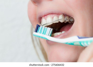 cleaning a mouth with dental brace