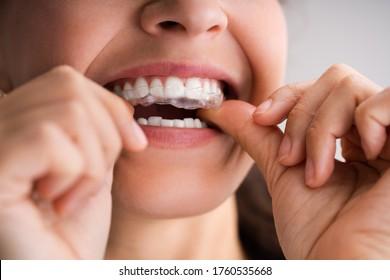 Clear Aligner Dental Night Guard For Teeth