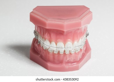 Clear braces - invisible brackets for teeth straightening