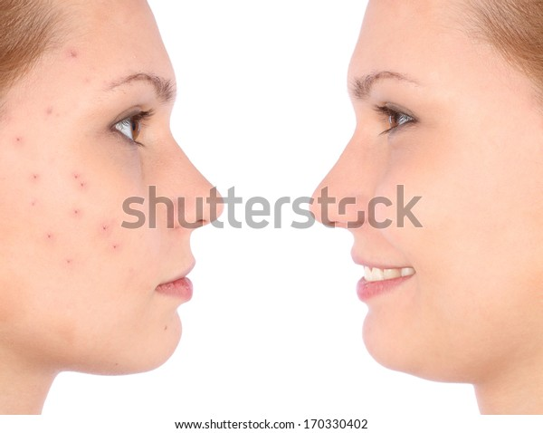 Clear skin concept with portrait of young girl