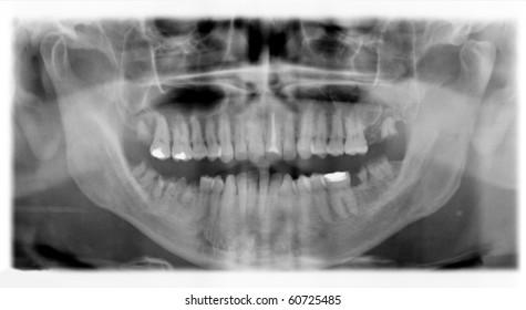 clinical checkup X-ray dental detail