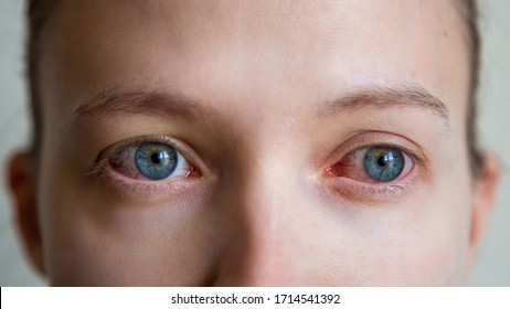 Close up of annoyed red blood eyes of female affected by conjunctivitis or after flu, cold or allergy. Concept of health, disease and treatment. Copy space for advertisement.
