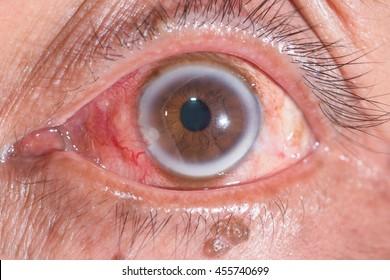 close up of the arcus senilis during eye examination.