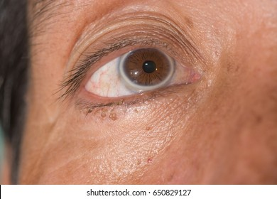 close up of arcus senilis during ophthalmic examination.
